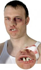 Dentiera denti da boxer